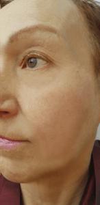 after Facial Contouring